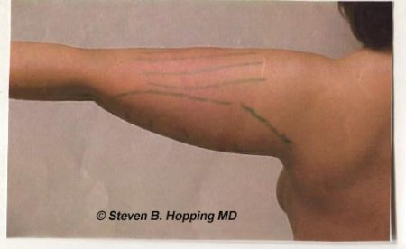 Dr. Stephen Hopping Arm Reduction Before Photo