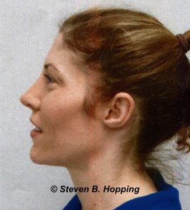Dr. Stephen Hopping Nose Surgery After Photo