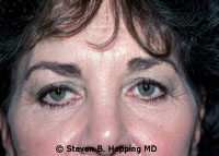 Dr. Stephen Hopping Eyelid Surgery Before Photo