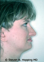 Dr. Stephen Hopping Nose Surgery Before Photo