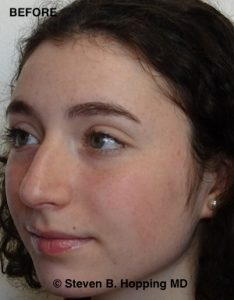 Before Nose Surgery