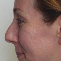 Before Nose Surgery 0314